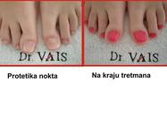 Gljivične infekcije noktiju lečenje Beograd