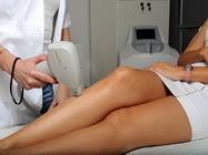 Laserska epilacija nogu