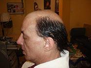 Nadogradnja kose u Beogradu