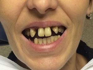 Stomatološka ordinacija Impact Dental
