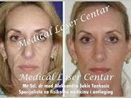 Medical Laser Centar