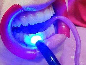 Protetik Centar S stomatološka ordinacija