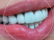 Dental Studio 31 stomatološka ordinacija