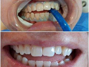Smile In Dental stomatološka ordinacija