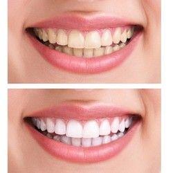 Kućno izbeljivanje zuba (2 folije + izbeljivač)
