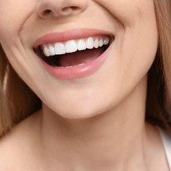 Kiretaža parodontalnih džepova (po zubu) - HIT cena!