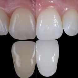 Ordinacijsko beljenje zuba (obe vilice) + uklanjanje kamenca GRATIS