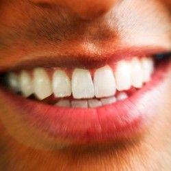 Peskiranje zuba + uklanjanje kamenca + poliranje zuba
