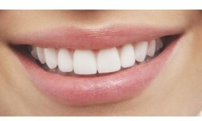 Plomba na prednjim zubima
