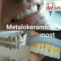 metalokeramicki most
