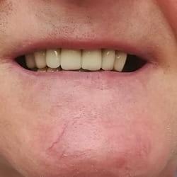 Mostovi za zube