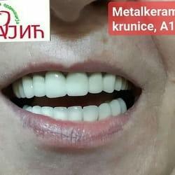 keramicke navlake za zube