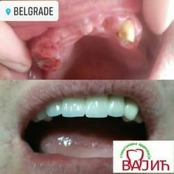 Krunice za zube Borca