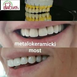 metaloreramicke navlake za zube Beograd