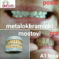 keramicke krunice za zube