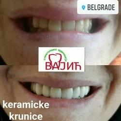 keramicke krunice za zube Borca