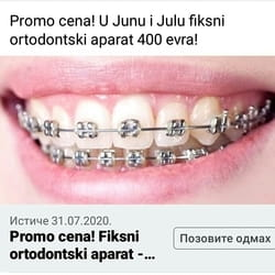 Fiksni ortodonski aparat