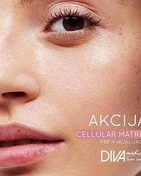 Cellular Matrix tretman