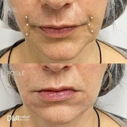 Tretman Juvederm filerima