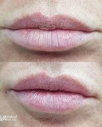 Povratite usnama oblik BEZBOLNO