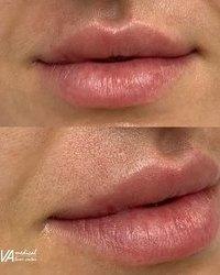 Postignite potpuno prirodan efekat punih usana