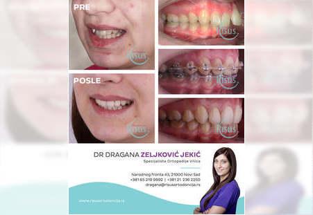 Terapija estetskim samoligirajućim aparatima u oba zubna niza