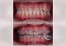 Ortodontska kamuflaža