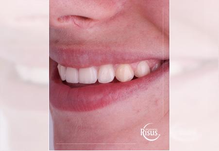Risus Ortodoncija - Put do savrsenog osmeha