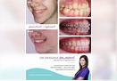 Korigovanje razlike u razvijenosti vilica bez vadjenja zuba