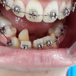 Fiksna proteza za zube Banovo brdo