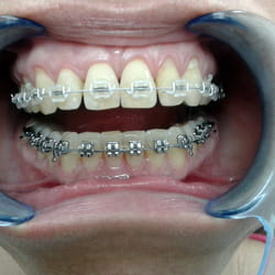Fiksna zubna proteza Banovo brdo