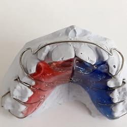 Mobilna zubna proteza Banovo brdo