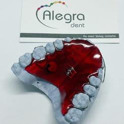 Decija proteza za zube Banovo brdo
