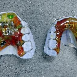Proteza za zube za decu Banovo brdo