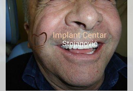Pacijent 3