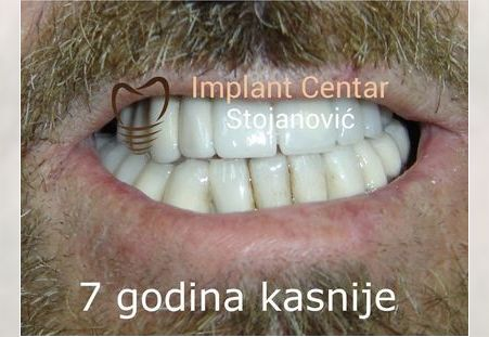 Pacijent 11
