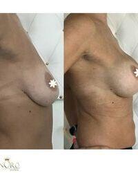 Estetska operacija grudi