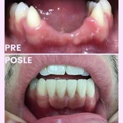 Protetska rehabilitacija zuba bezmetalnim mostom