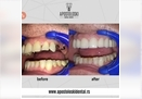 Straumann - dentalni implantat
