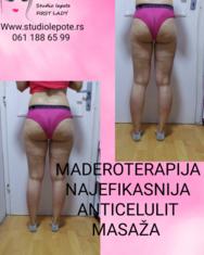 Maderoterapija