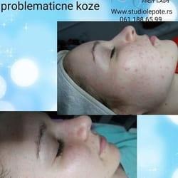Lečenje problematicne kože