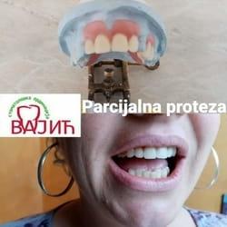 Parcijalna proteza