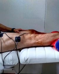 Elektrostimulacija quadricepsa nakon operacije prednjih ukrštenih ligamenata.