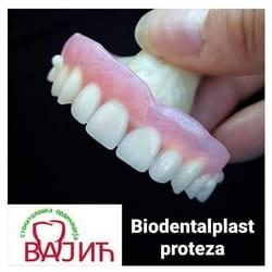 Elasticna proteza