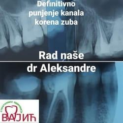 Punjenje zuba Beograd