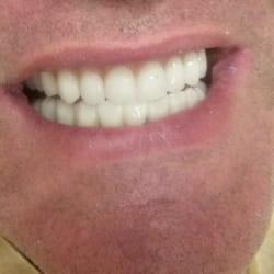 Folije za ispravljanje zuba Ortodoncija