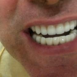 Estetska fiksna proteza Ortodoncija