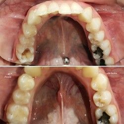 Plombe na zubima