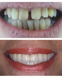 Komleksna protetska rehabilitacija Dental Step