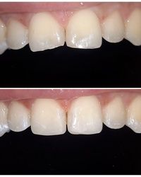 Kompozitne fasete Dental Step